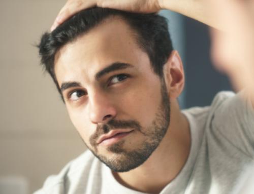 3 Segnali che preannunciano la Perdita di capelli (e come mascherarla!)